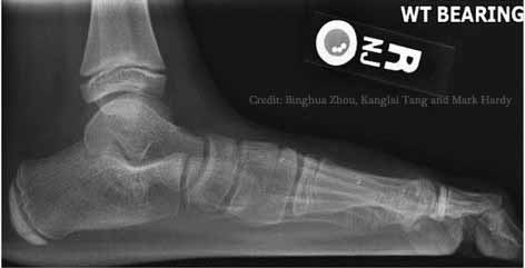Lateral_X-ray_of_a_flat_foot_an_C-sign